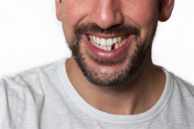 Mut zur Lücke muss heute niemand mehr haben - der Haken bei den vielen Möglichkeiten der modernen Zahnmedizin sind allerdings die Kosten. - Foto: djd/Ergo Direkt Versicherungen/thx